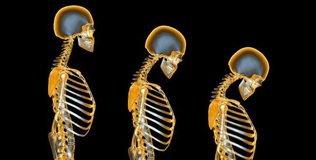 درباره بیماری پوکی استخوان